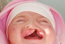дете с цепната уста