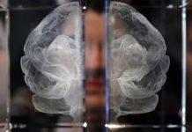 имплант в мозъка