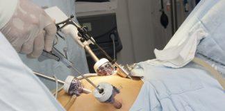 операции за отслабване