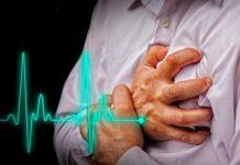 инфаркти