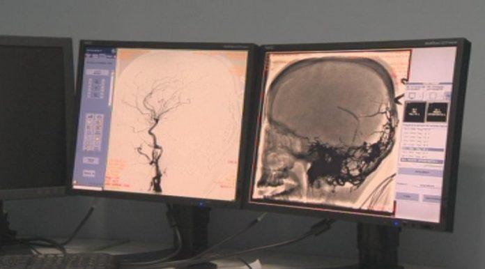 мозъчна операция