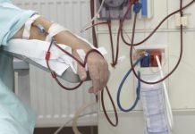хемодиализа