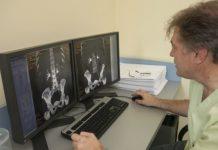 виртуална цистоскопия