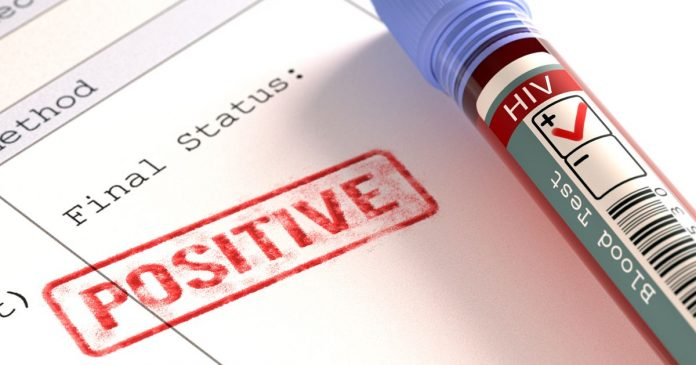ХИВ-позитивни
